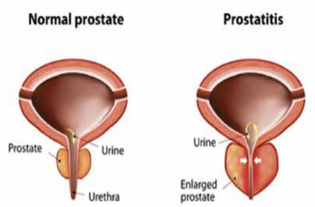 Prostatitis a fiatal férfiak következményeiben Krónikus prostatitis színpadi remisszió